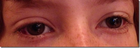 eyes_after_strabismus_surgery