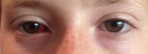 straight eyes post op